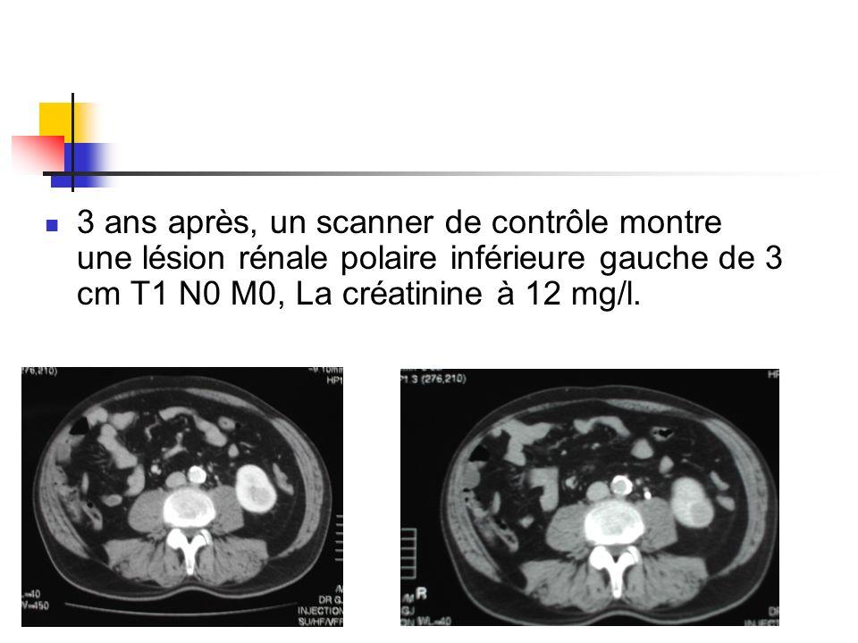 3 ans après, un scanner de contrôle montre une lésion rénale polaire inférieure gauche de 3 cm T1 N0 M0, La créatinine à 12 mg/l.