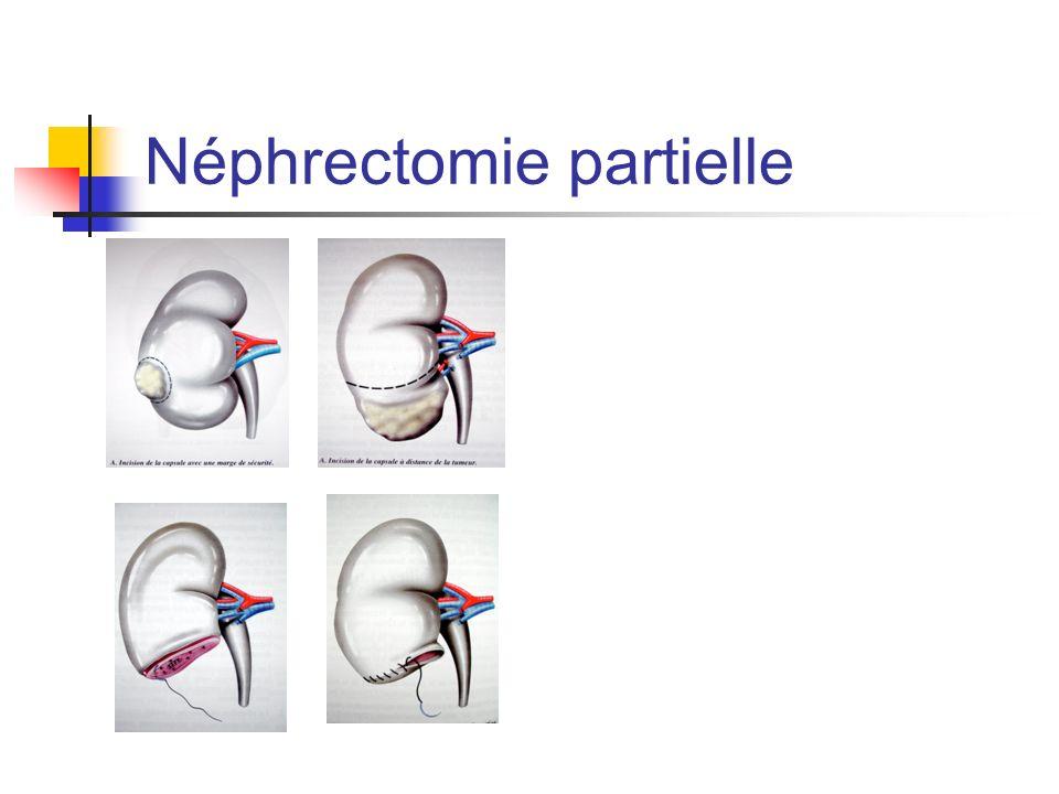 Néphrectomie partielle