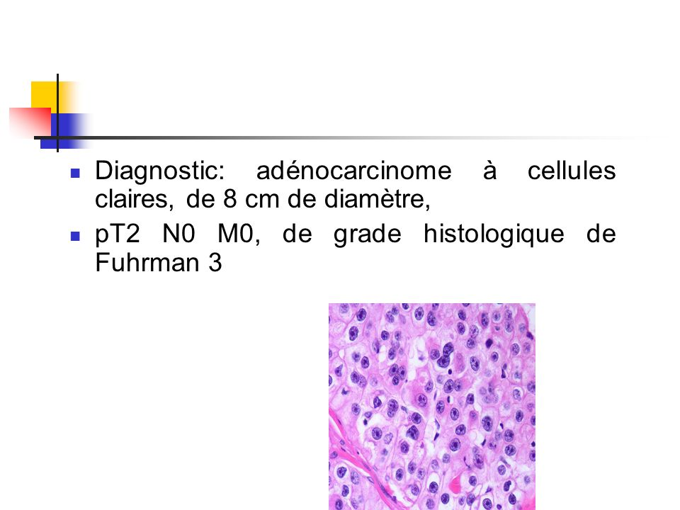 Diagnostic: adénocarcinome à cellules claires, de 8 cm de diamètre,