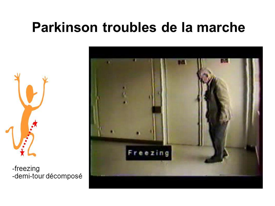 Parkinson troubles de la marche
