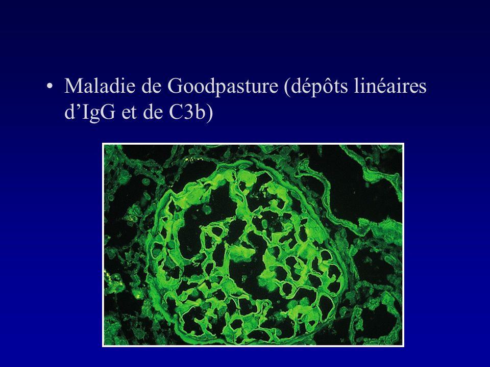 Maladie de Goodpasture (dépôts linéaires d'IgG et de C3b)