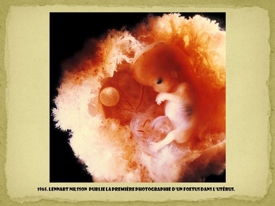 1965. Lennart Nilsson publie la première photographie d un foetus dans l utérus.