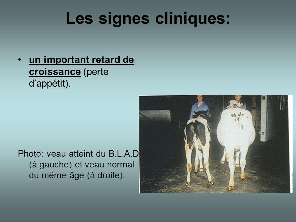 Les signes cliniques: un important retard de croissance (perte d'appétit).