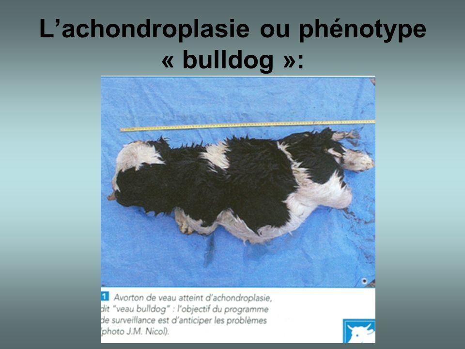 L'achondroplasie ou phénotype « bulldog »: