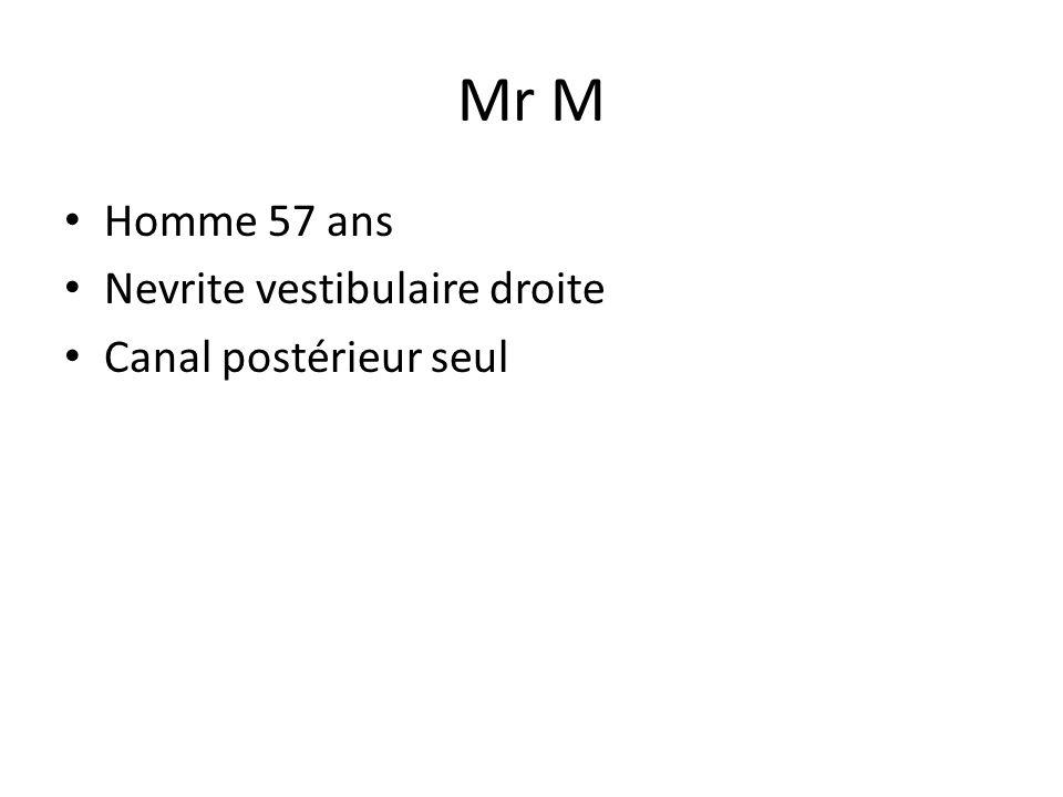 Mr M Homme 57 ans Nevrite vestibulaire droite Canal postérieur seul