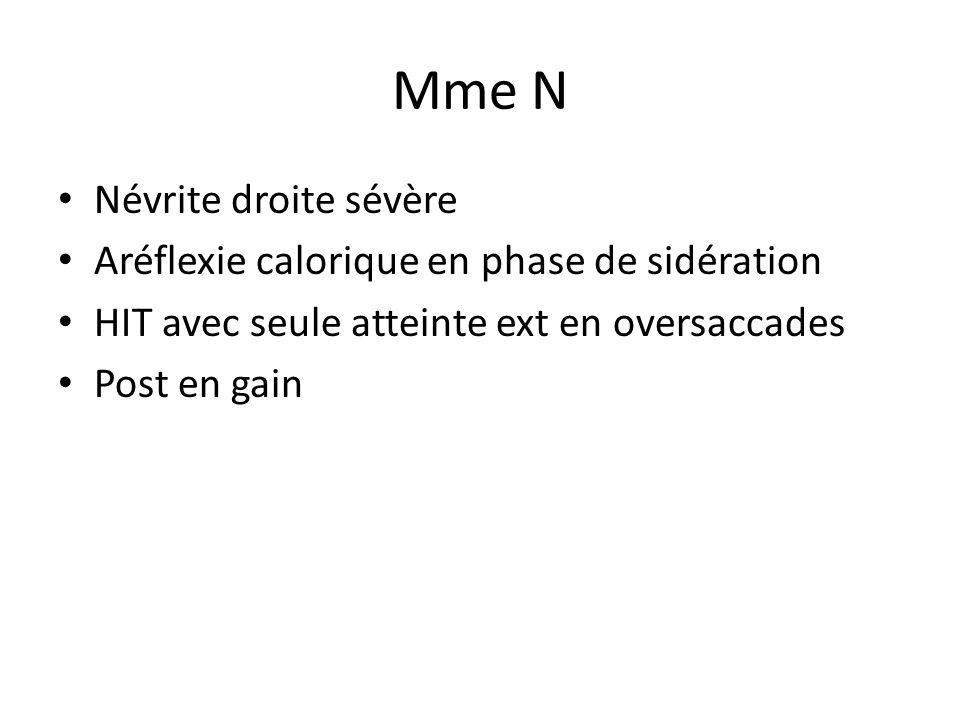 Mme N Névrite droite sévère Aréflexie calorique en phase de sidération
