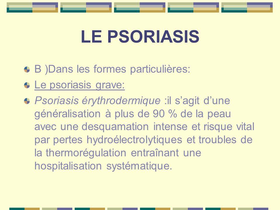 LE PSORIASIS B )Dans les formes particulières: Le psoriasis grave: