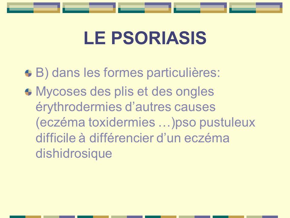LE PSORIASIS B) dans les formes particulières: