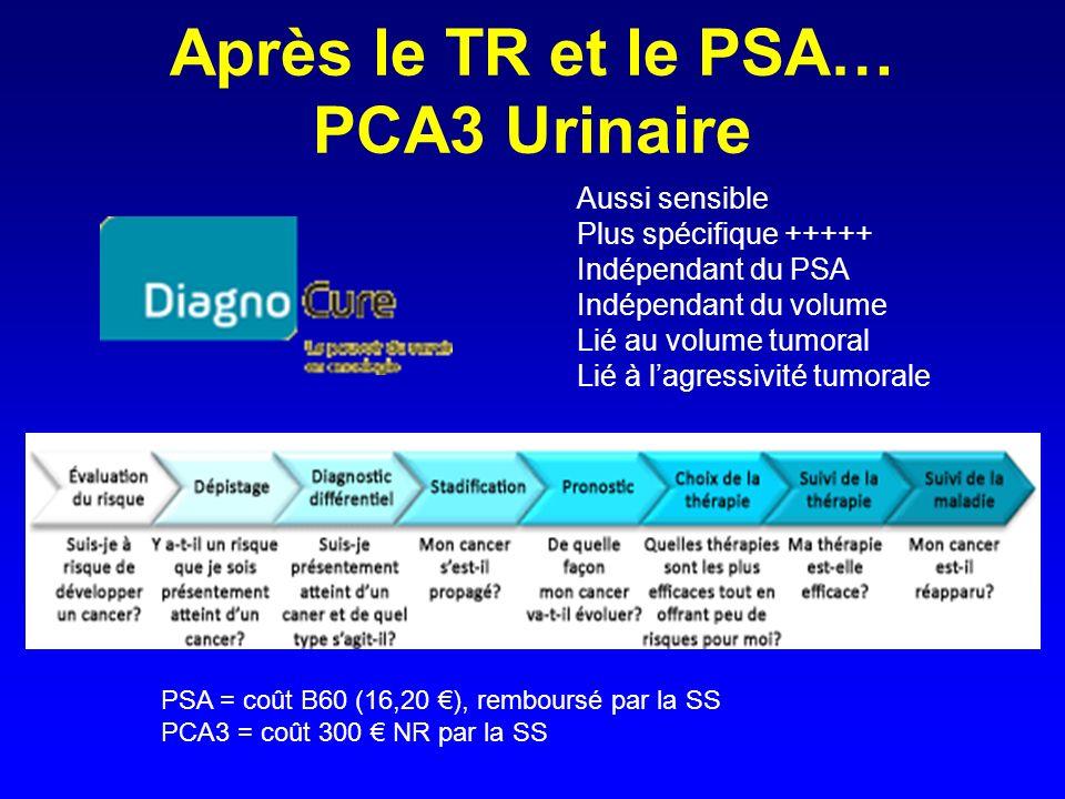 Après le TR et le PSA… PCA3 Urinaire