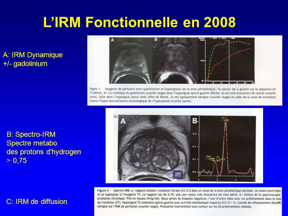 L'IRM Fonctionnelle en 2008