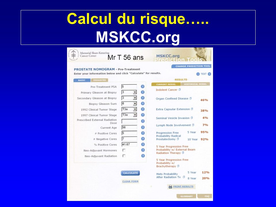 Calcul du risque….. MSKCC.org