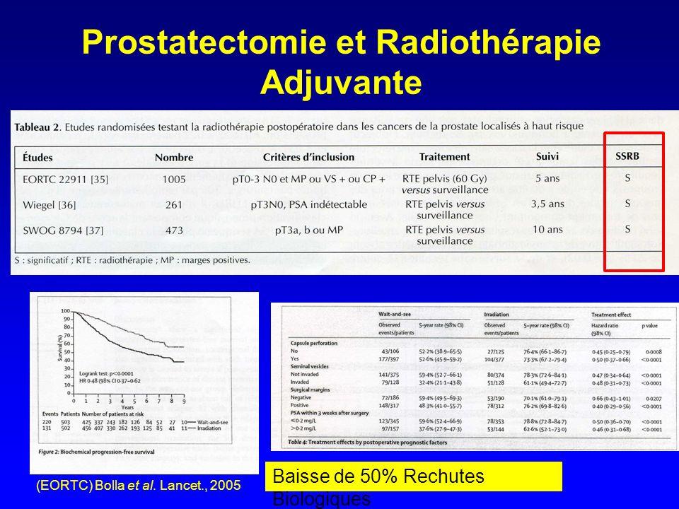Prostatectomie et Radiothérapie Adjuvante