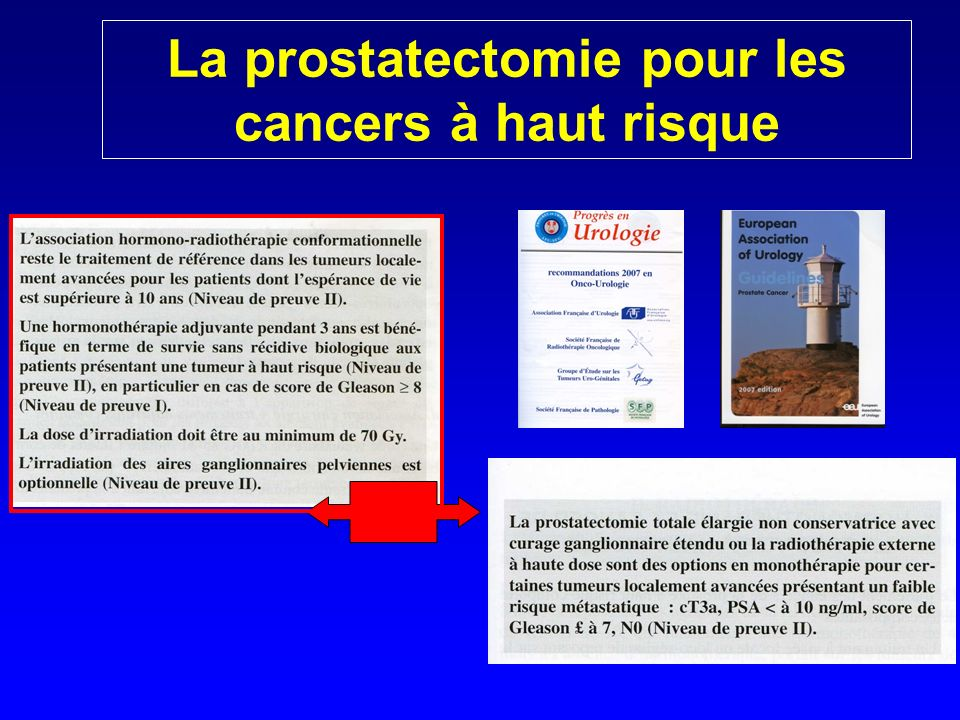 La prostatectomie pour les cancers à haut risque