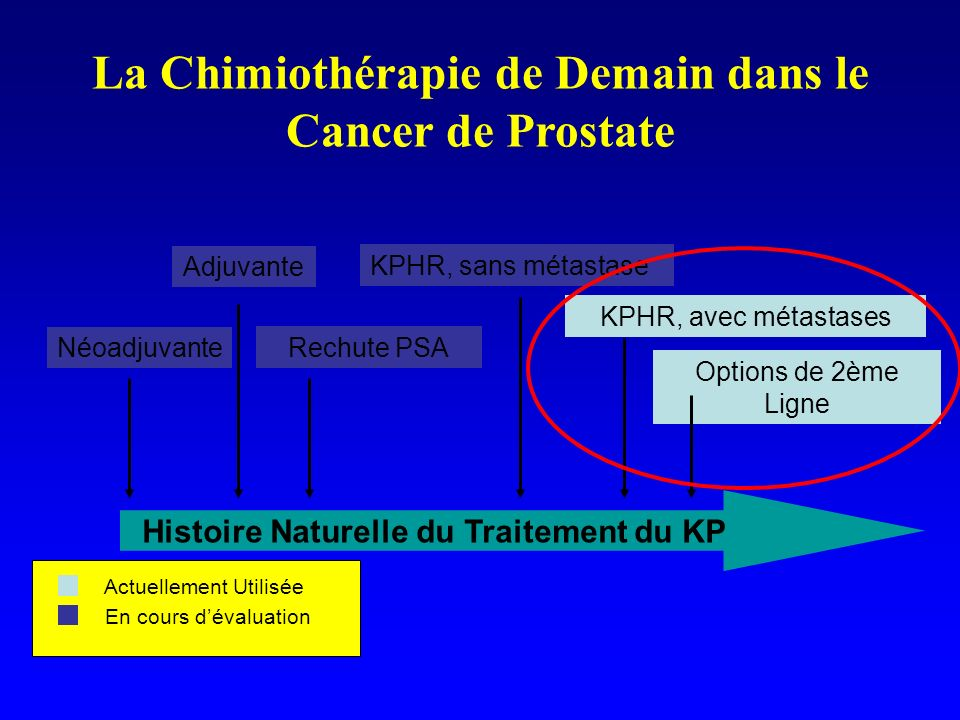 La Chimiothérapie de Demain dans le Cancer de Prostate