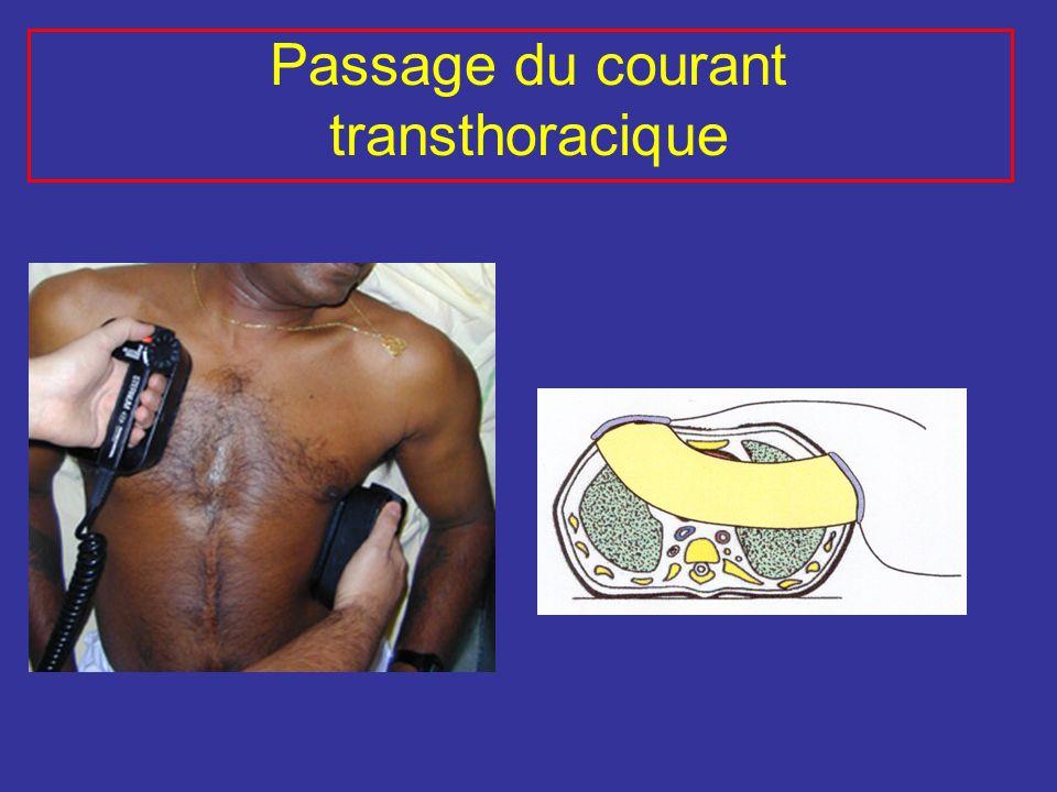 Passage du courant transthoracique