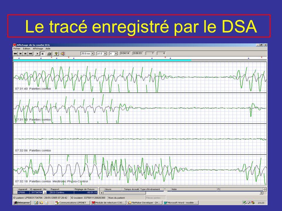 Le tracé enregistré par le DSA