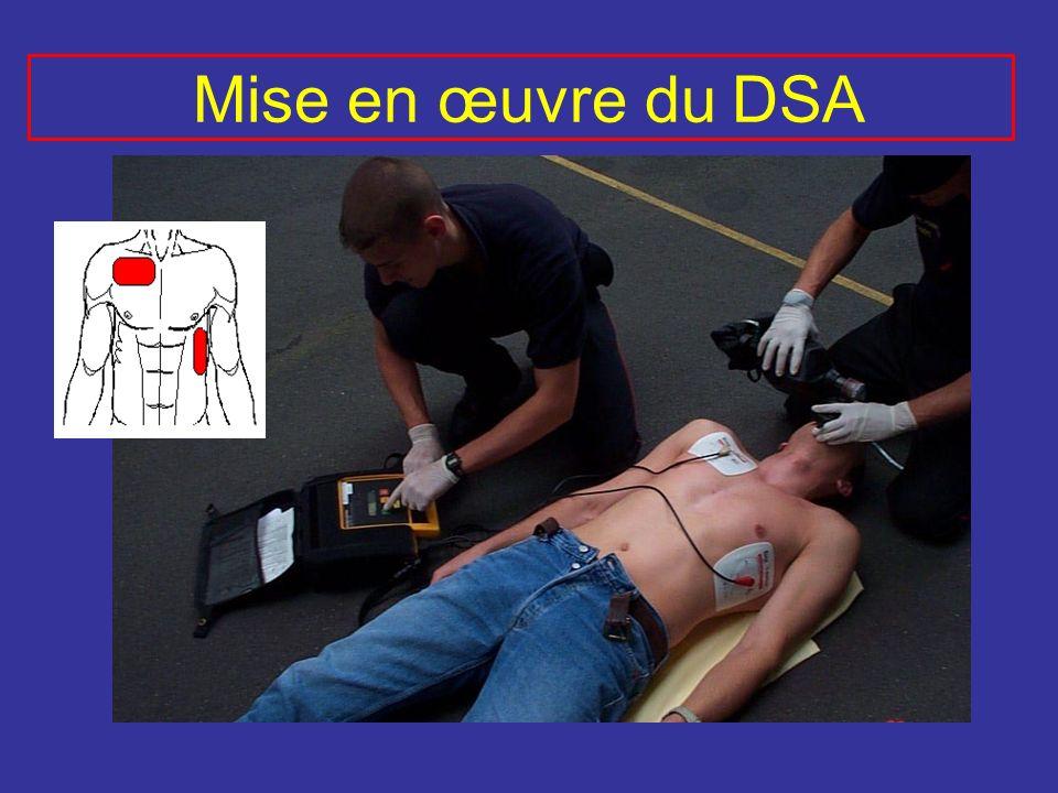 Mise en œuvre du DSA