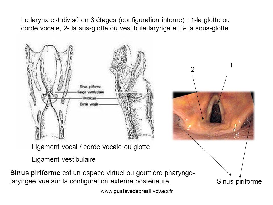 Ligament vocal / corde vocale ou glotte Ligament vestibulaire