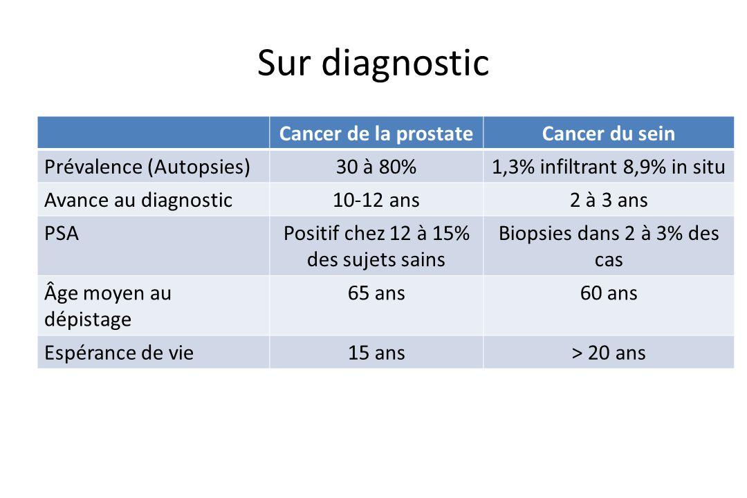 Sur diagnostic Cancer de la prostate Cancer du sein