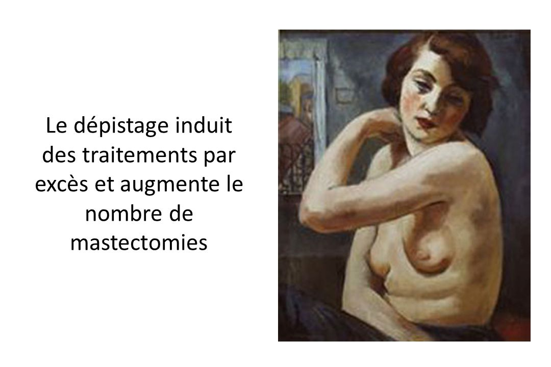 Le dépistage induit des traitements par excès et augmente le nombre de mastectomies