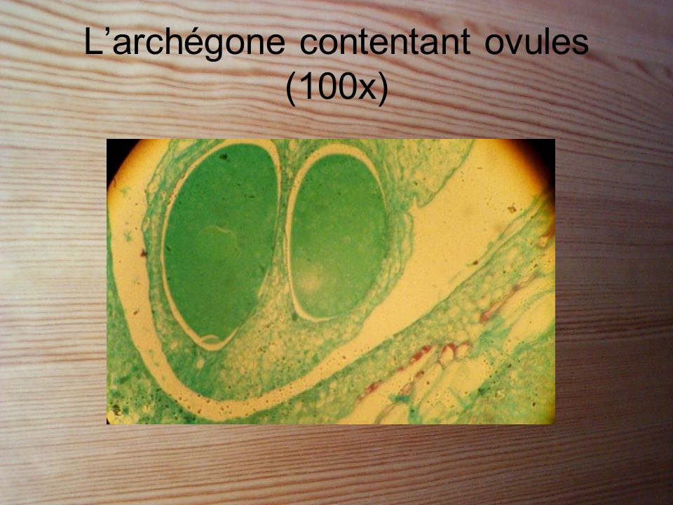 L'archégone contentant ovules (100x)