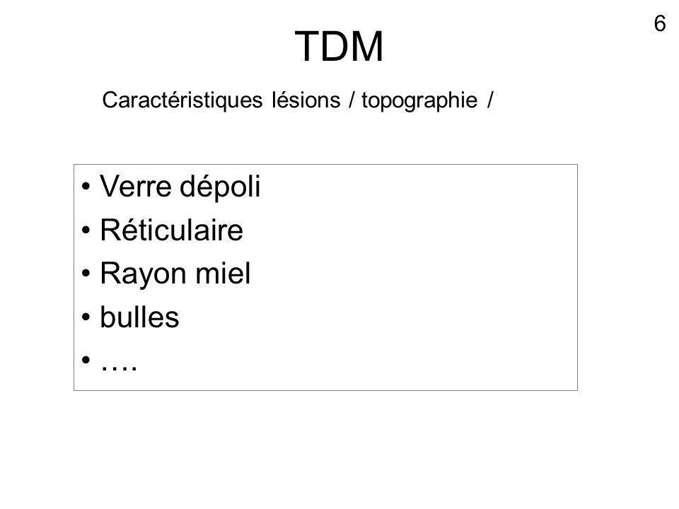 TDM Verre dépoli Réticulaire Rayon miel bulles …. 6