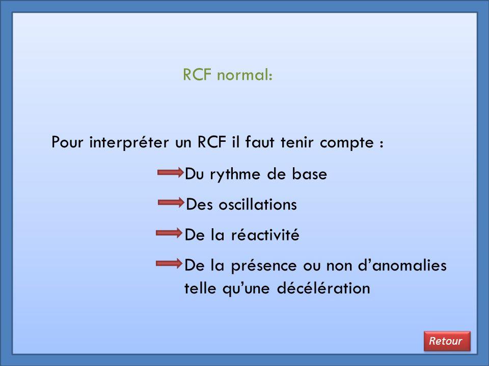 Pour interpréter un RCF il faut tenir compte :
