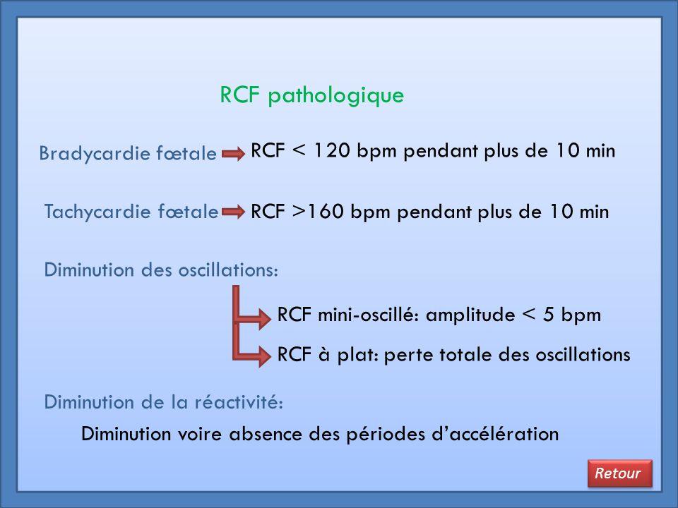RCF pathologique Bradycardie fœtale