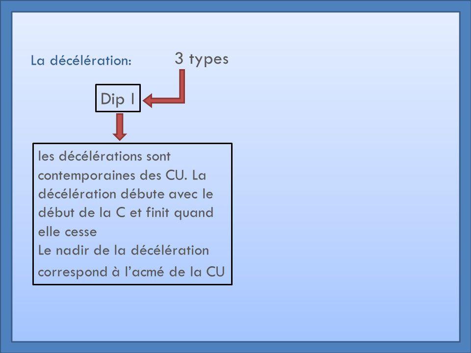 3 types Dip I La décélération: