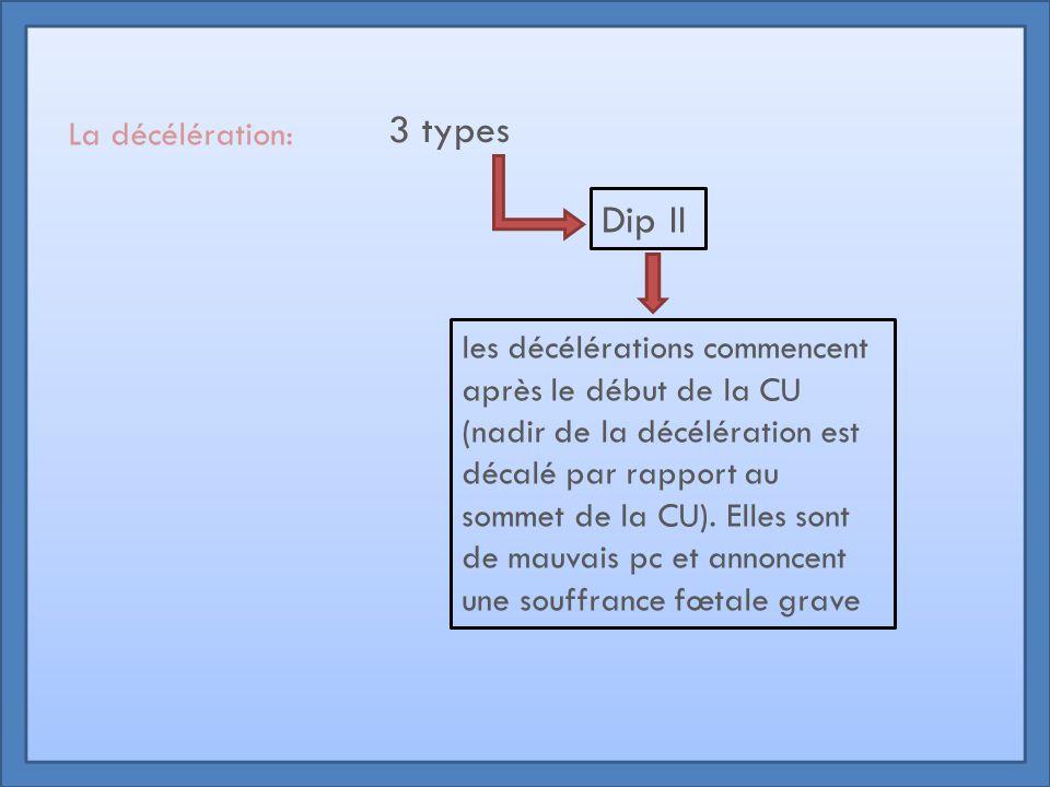 3 types Dip II La décélération: