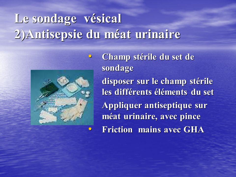 Le sondage vésical 2)Antisepsie du méat urinaire