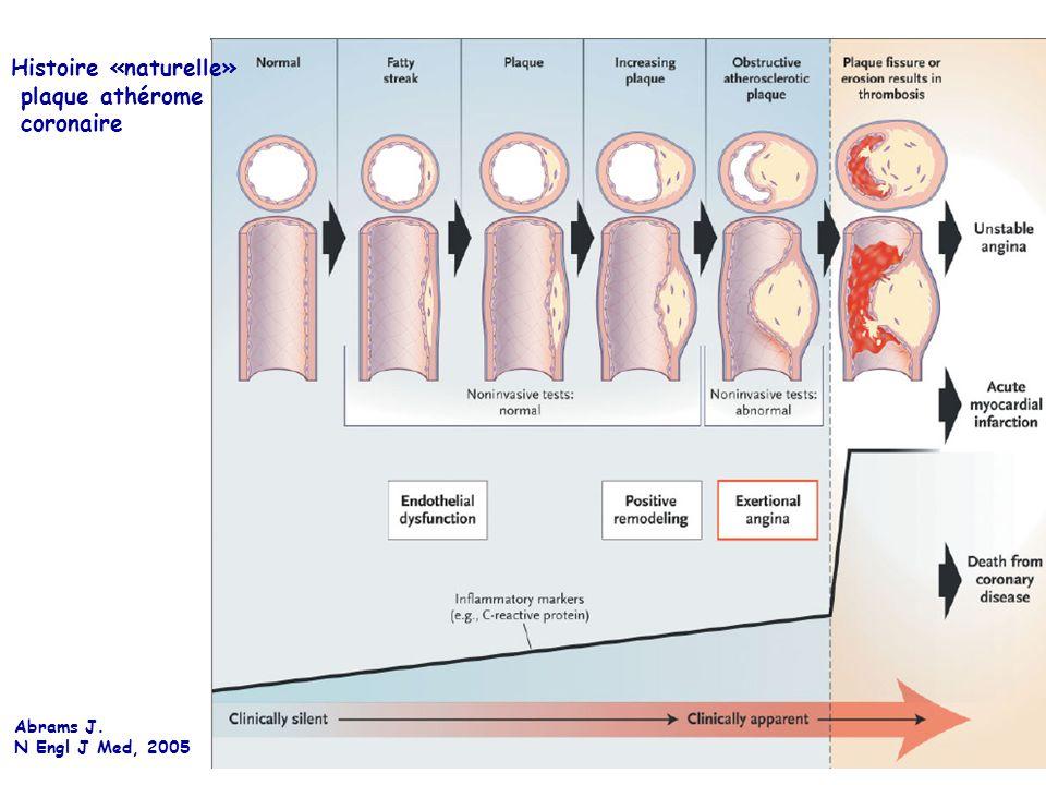 Histoire «naturelle» plaque athérome coronaire