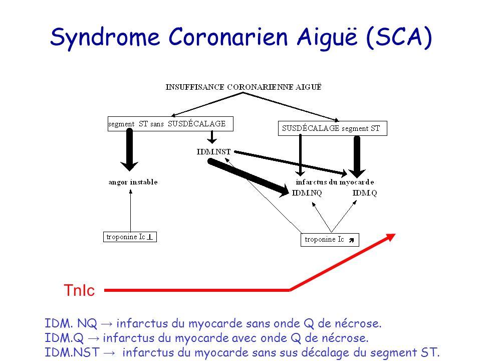 Syndrome Coronarien Aiguë (SCA)