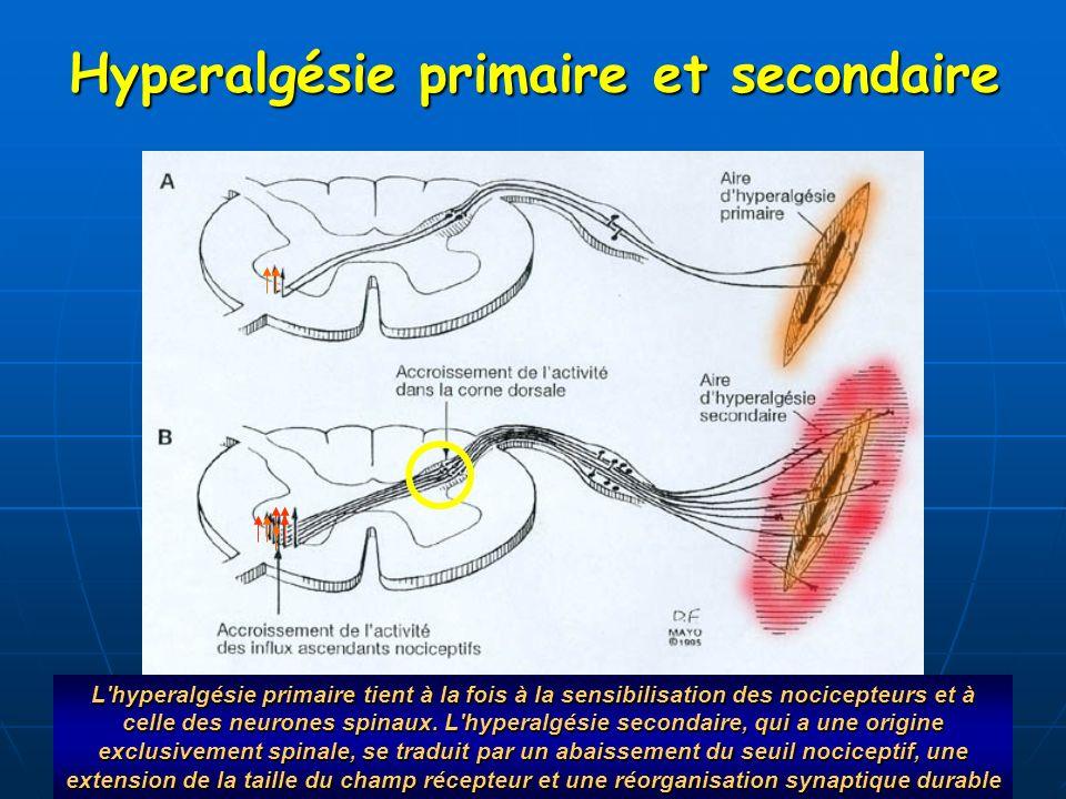 Hyperalgésie primaire et secondaire