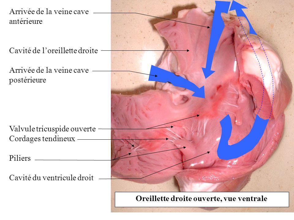 Oreillette droite ouverte, vue ventrale