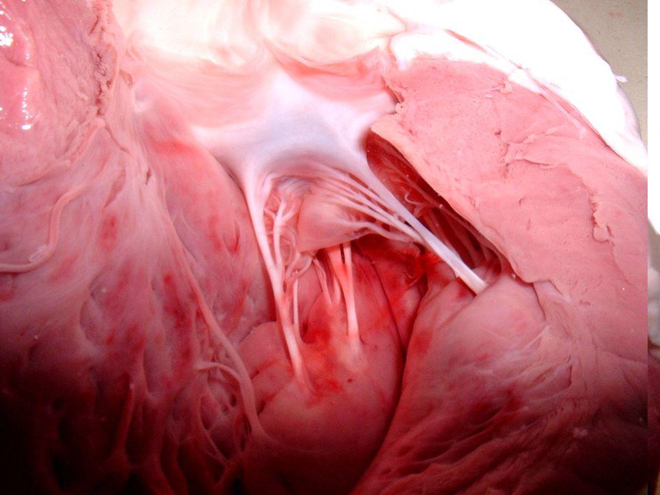 Ventricule gauche ouvert, vue ventrale