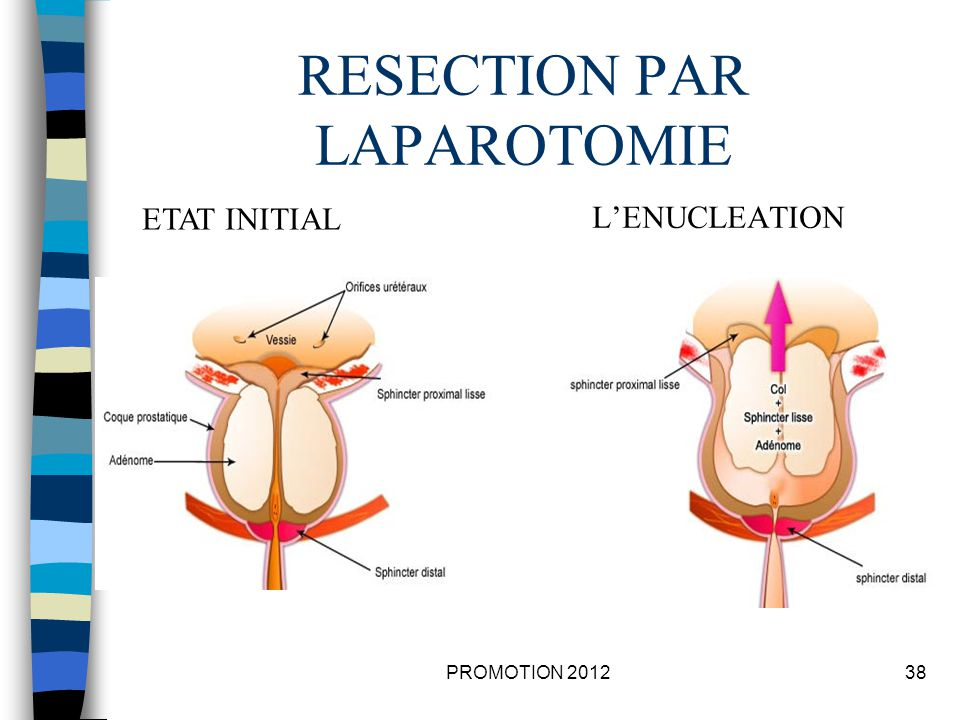 RESECTION PAR LAPAROTOMIE