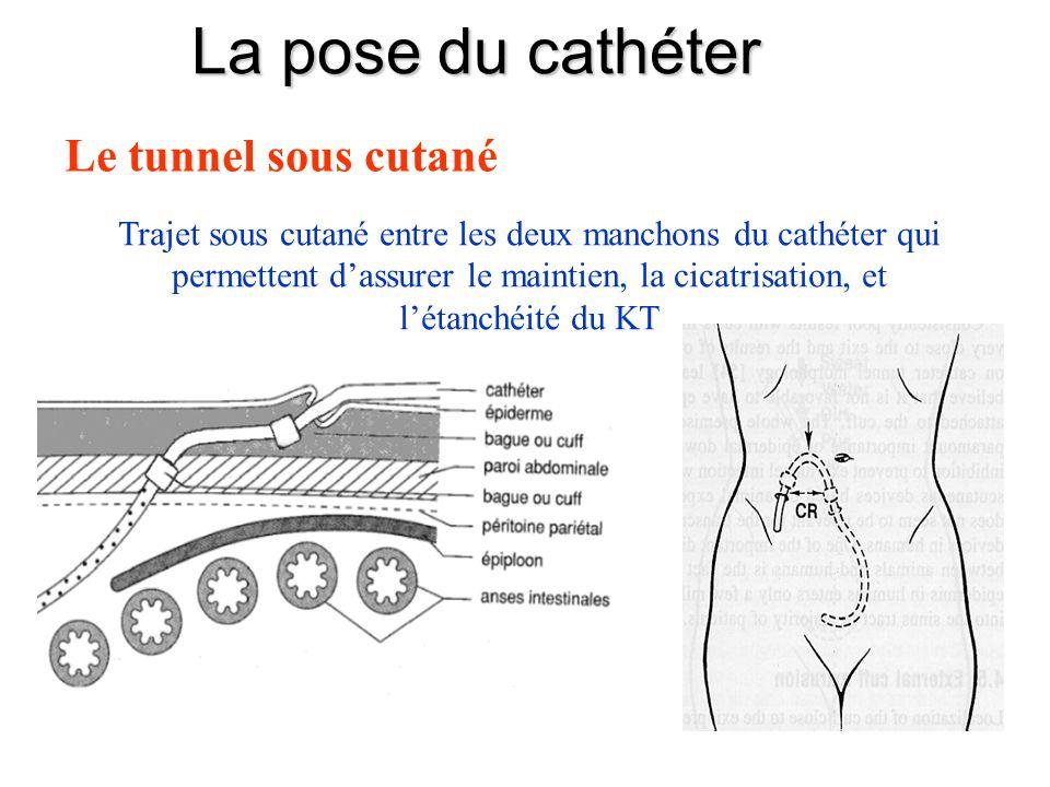 La pose du cathéter Le tunnel sous cutané