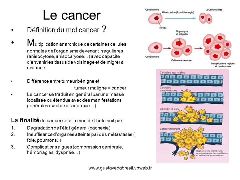 Le cancer Définition du mot cancer