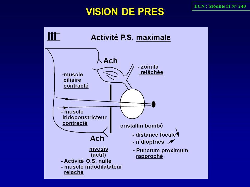III VISION DE PRES Ach Activité P.S. maximale - zonula relâchée