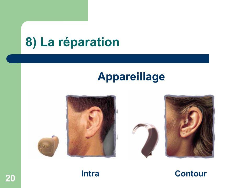 8) La réparation Appareillage Intra Contour