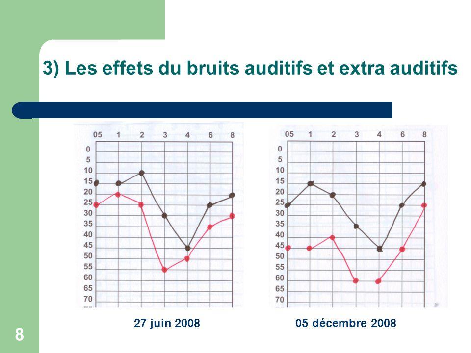 3) Les effets du bruits auditifs et extra auditifs