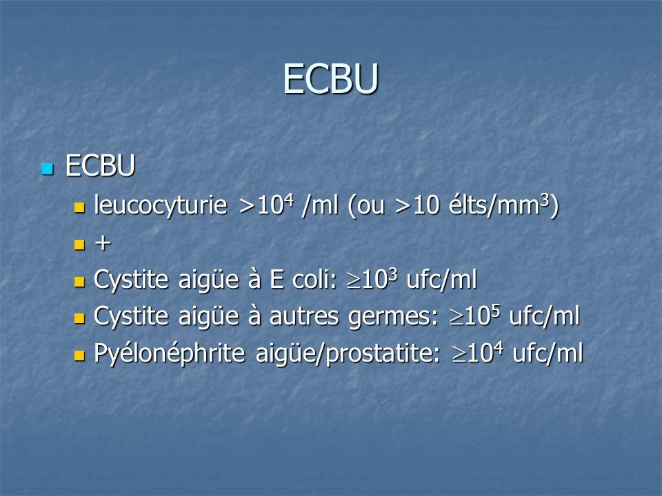 ECBU ECBU leucocyturie >104 /ml (ou >10 élts/mm3) +