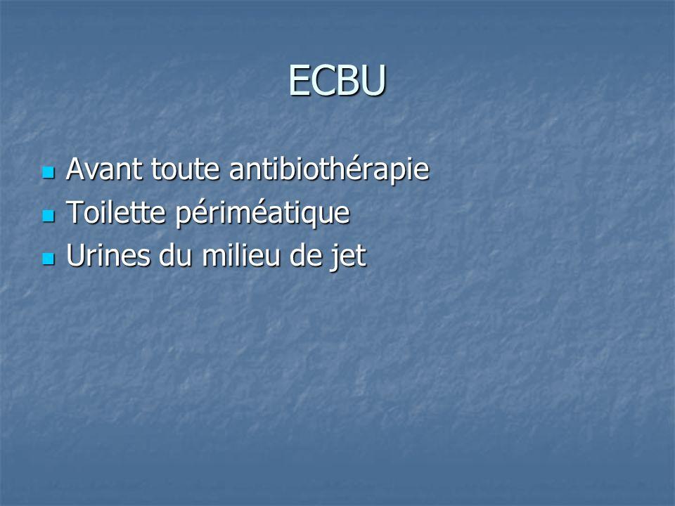 ECBU Avant toute antibiothérapie Toilette périméatique