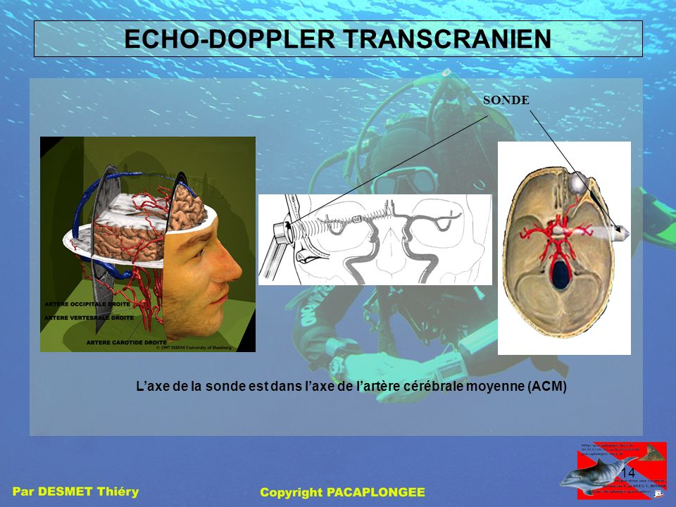 ECHO-DOPPLER TRANSCRANIEN