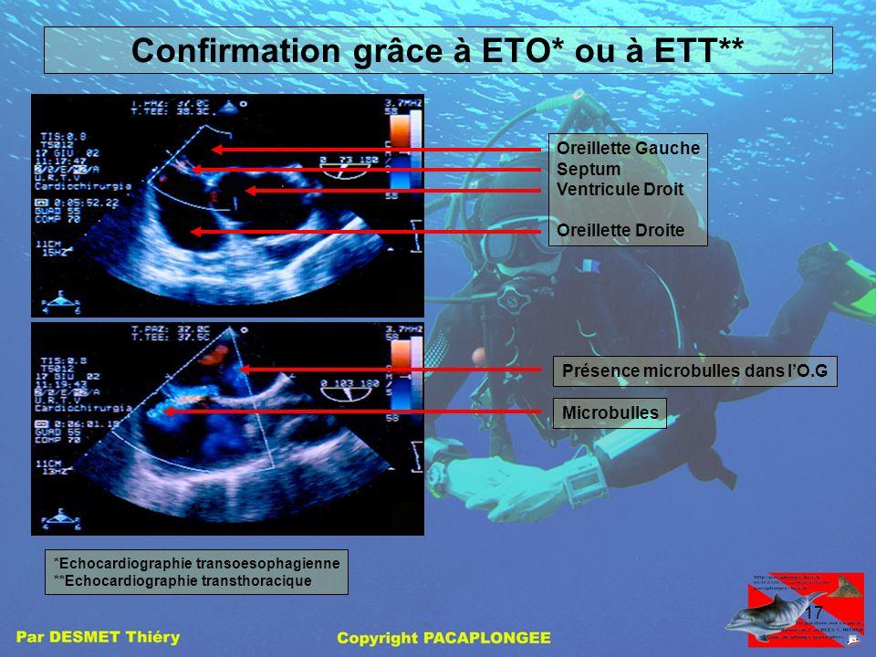 Confirmation grâce à ETO* ou à ETT**