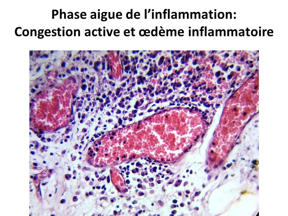 Phase aigue de l'inflammation: Congestion active et œdème inflammatoire