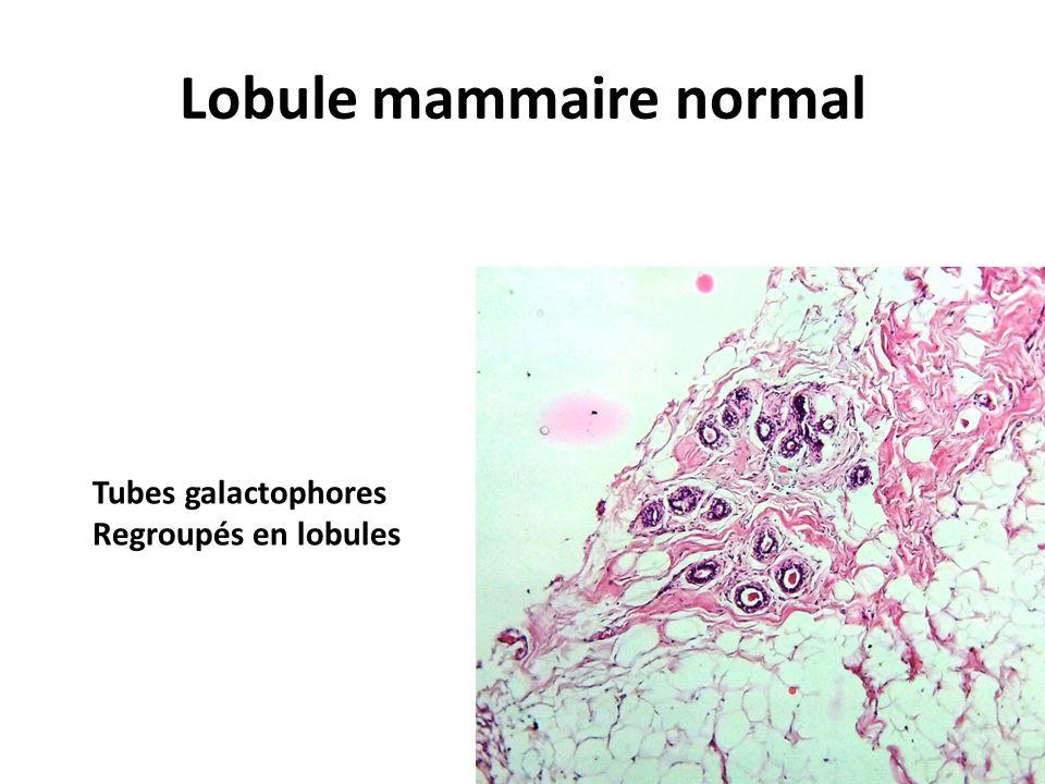 Lobule mammaire normal