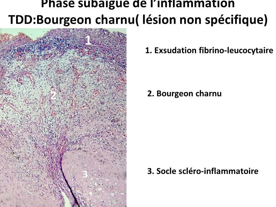 Phase subaigue de l'inflammation TDD:Bourgeon charnu( lésion non spécifique)