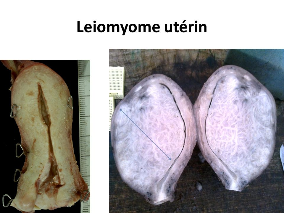 Leiomyome utérin